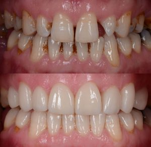 dental veneers tampa before and after